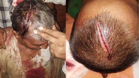 वडाध्यक्षको नेतृत्वमा 'गुण्डा' शैलीमा सांघातिक हमला, ४ गम्भीर घाइते